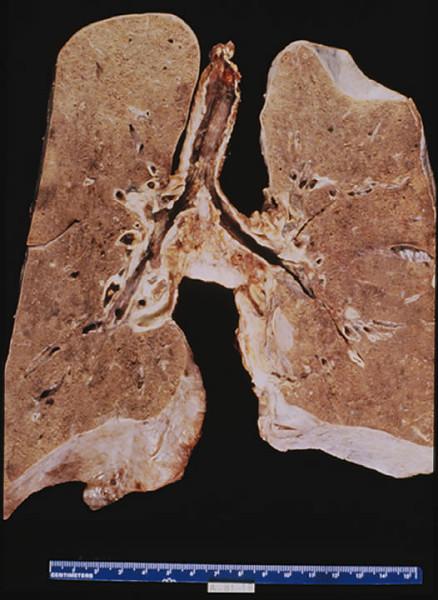 Duke Pathology - Weeks 11-12: Respiratory System