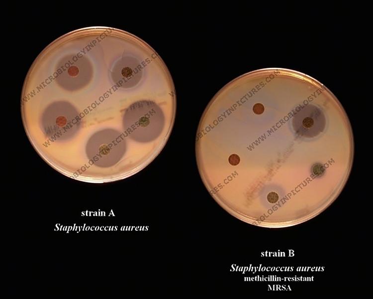 Duke Pathology - Microbiology Cases