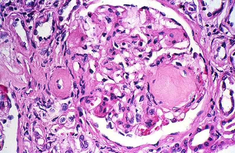 Kidney histology normal