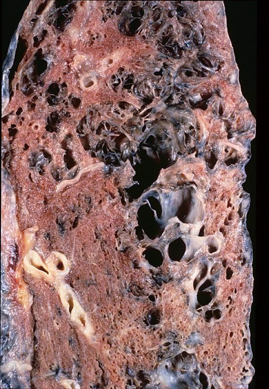 Duke Pathology Weeks 11 12 Respiratory System