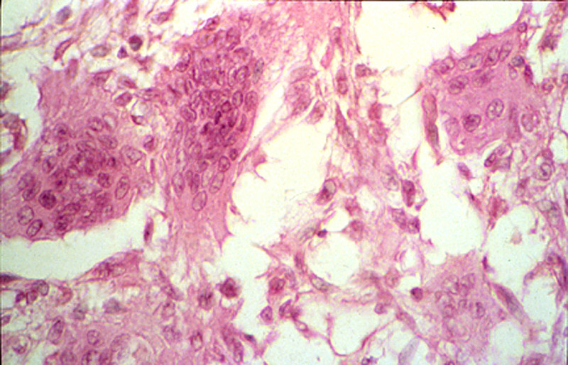 Duke Pathology - Week 19: Bone, Joints, & Skin