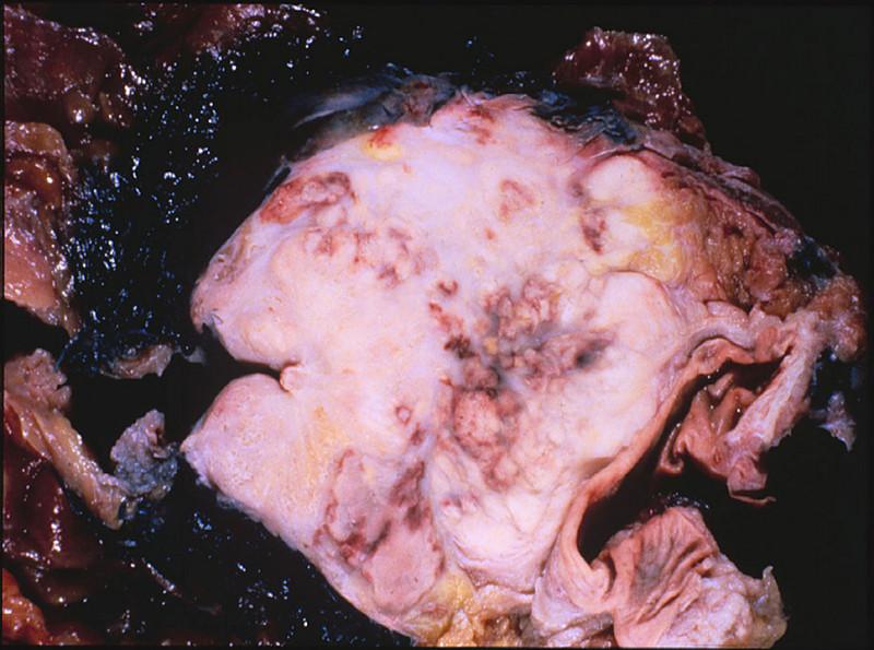 chronische prostatitis hämorrhoiden blut im urin.jpg