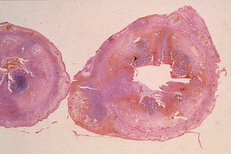 duke pathology